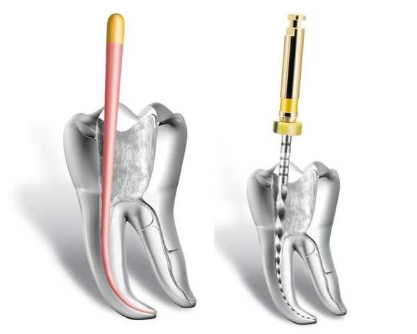 Dentiste endodontie