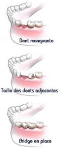 bridge-dents